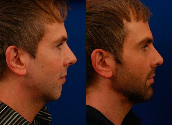 Chin Plastic Surgery Before After photo - 1