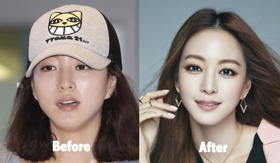 Chinese Actress Plastic Surgery Before And After photo - 1