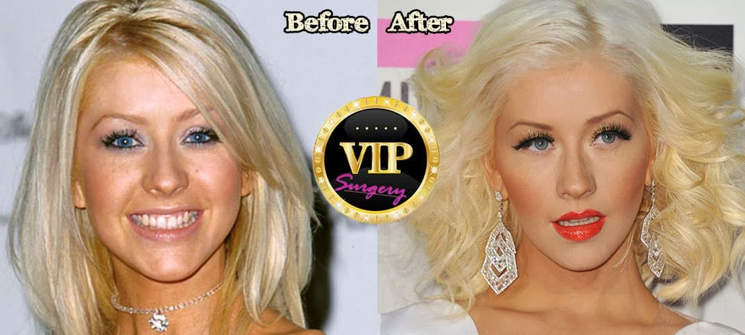 Christina El Moussa Before Plastic Surgery photo - 1
