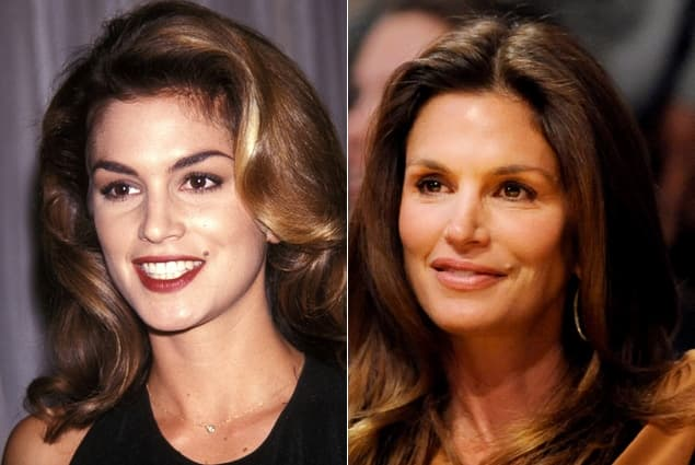 Cindy Crawford Before And After Plastic Surgery photo - 1