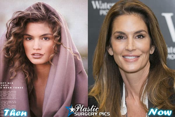 Cindy Crawford Plastic Surgery Before And After photo - 1