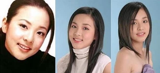 Cl Plastic Surgery Before And After photo - 1
