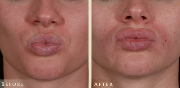 Columbus Ohio Plastic Surgery Before And After photo - 1