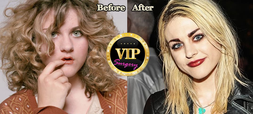 Countney Love Plastic Surgery Before After photo - 1