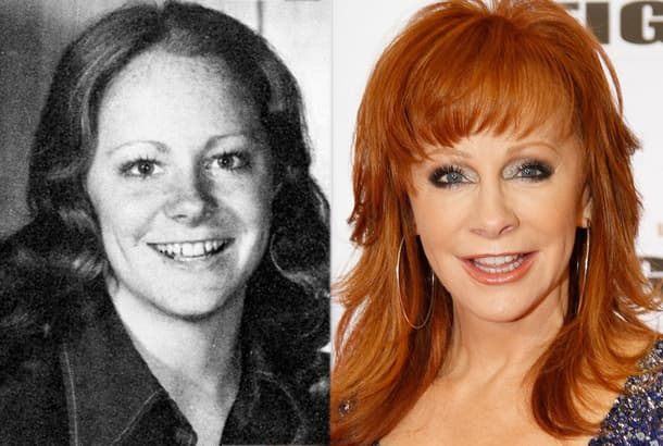 Country Singer Plastic Surgery Before And After photo - 1