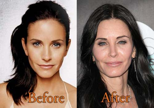 Courteney Cox Plastic Surgery Before After photo - 1