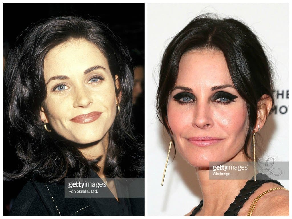 Courteney Cox Right Before Plastic Surgery photo - 1