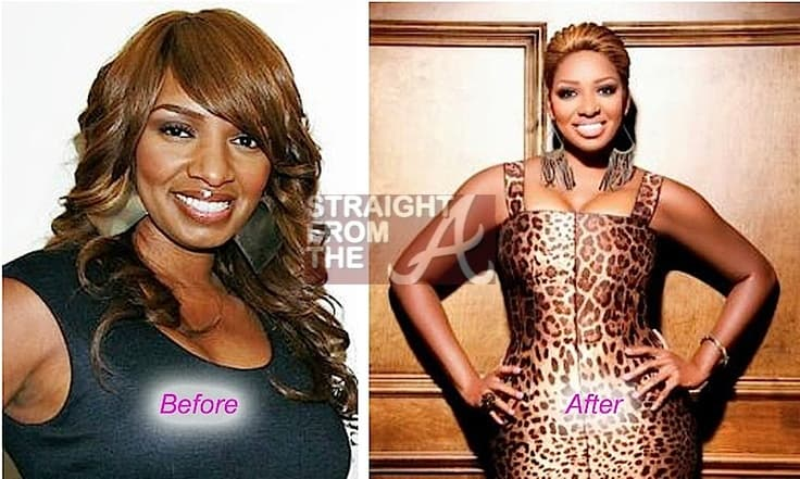 Crawford Atlanta Plastic Surgery Before And After photo - 1