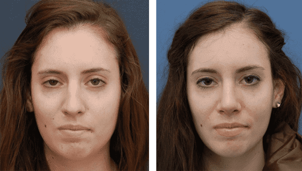 Criteria For Eye Plastic Surgery Before And After photo - 1