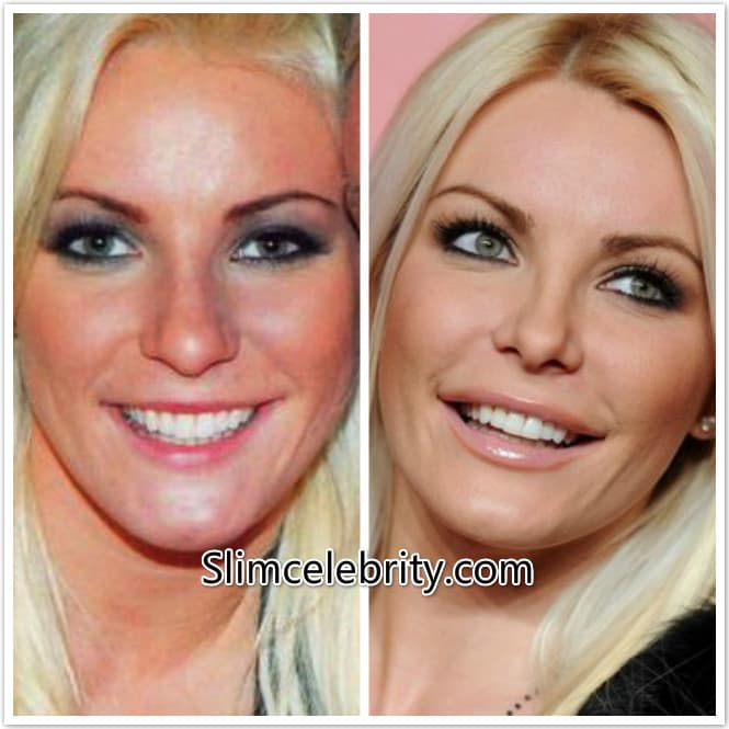 Crystal Harris Before And After Plastic Surgery photo - 1