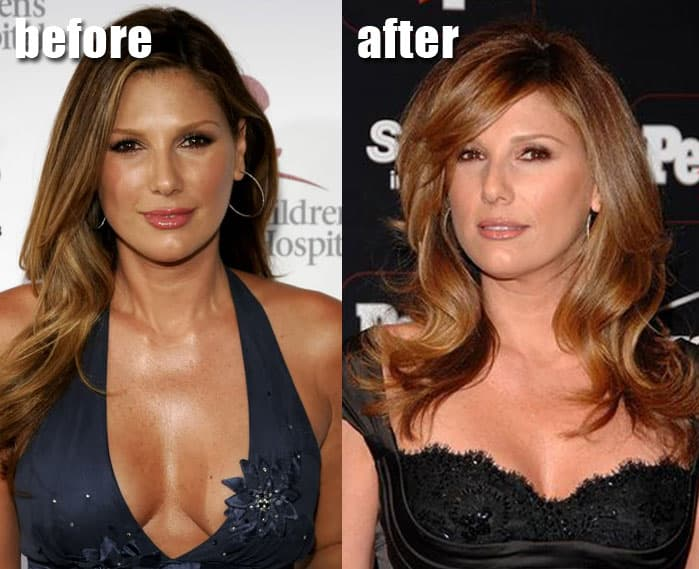 Daisy De La Hoya Before And After Plastic Surgery photo - 1
