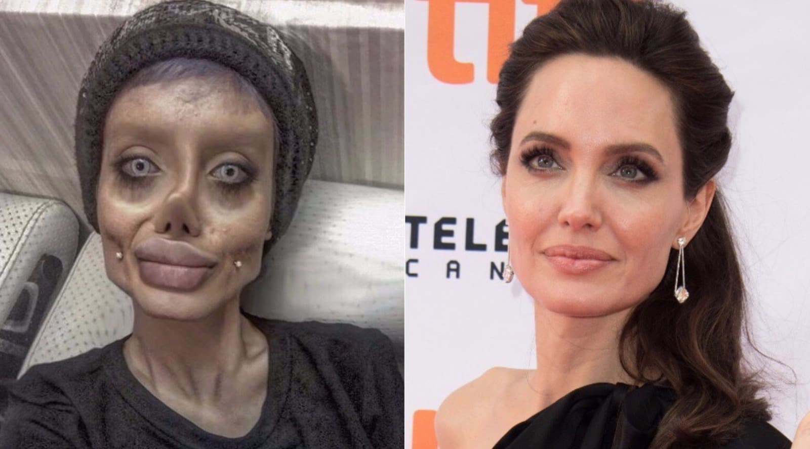 Darcy Before The 90 Days Plastic Surgery photo - 1