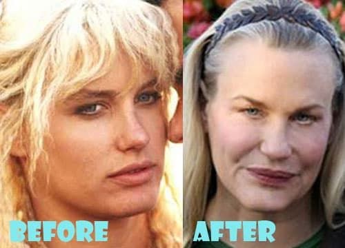 Daryl Hannah Plastic Surgery Before And After photo - 1
