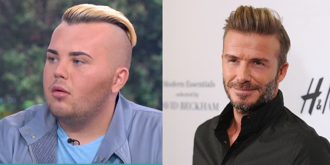 David Beckham Before Plastic Surgery photo - 1