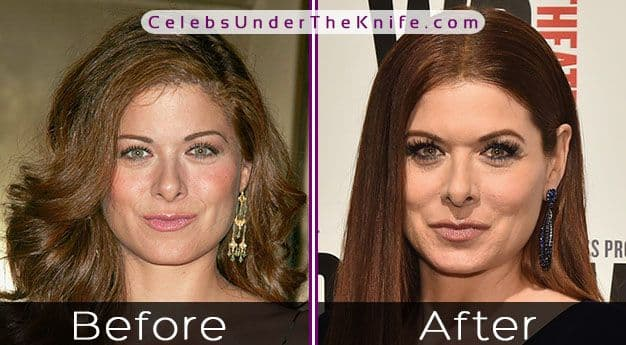 Debra Messing Before And After Plastic Surgery photo - 1