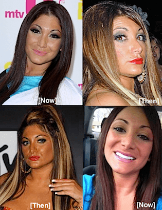Deena Plastic Surgery Before And After photo - 1