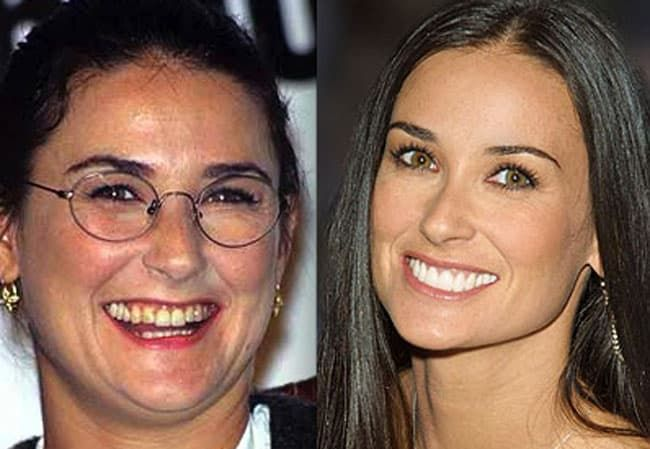 Demi Moore Before And After Plastic Surgery photo - 1