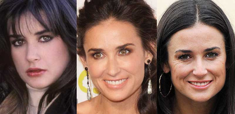 Demi Moore Plastic Surgery Before And After photo - 1