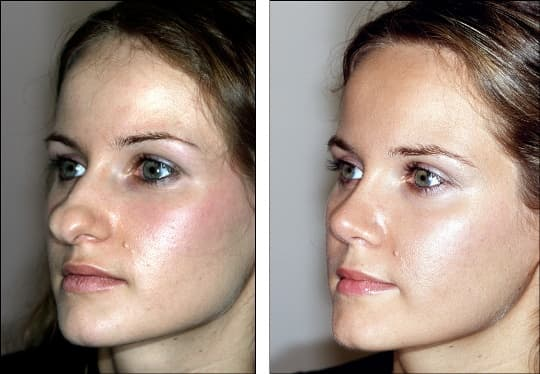 Deviated Septum Plastic Surgery Before And After photo - 1