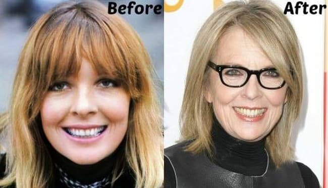 Diane Keaton Plastic Surgery Before And After photo - 1