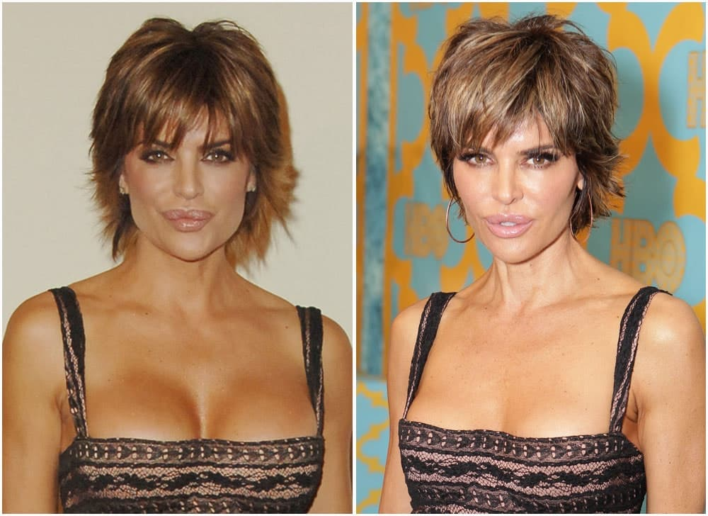 Did Lisa Rinna Have Plastic Surgery Before She Was Famous photo - 1