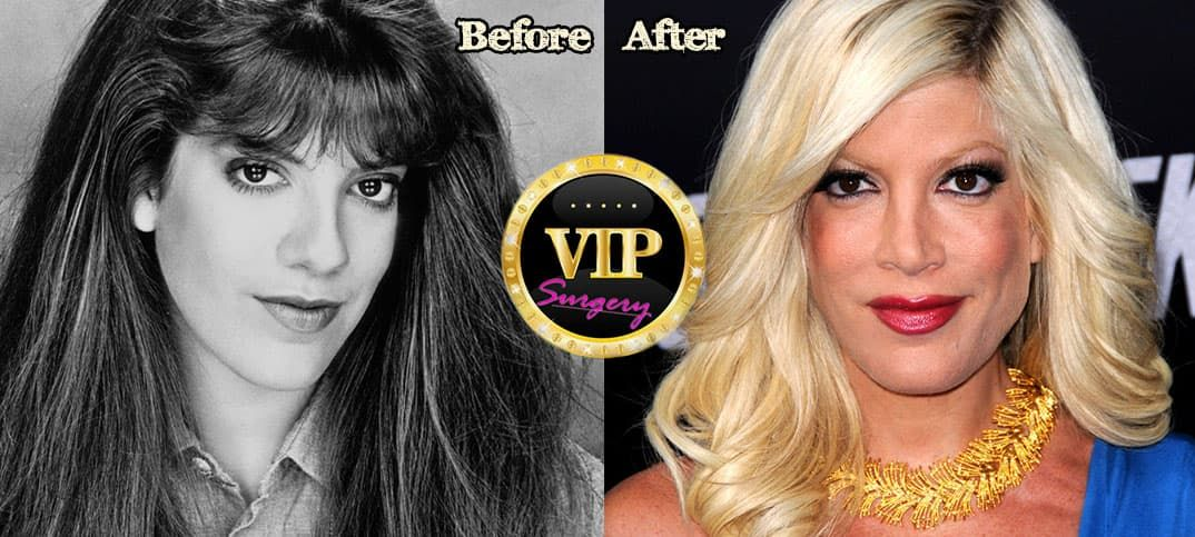 Dolly Parton Before Then And Now Plastic Surgery photo - 1
