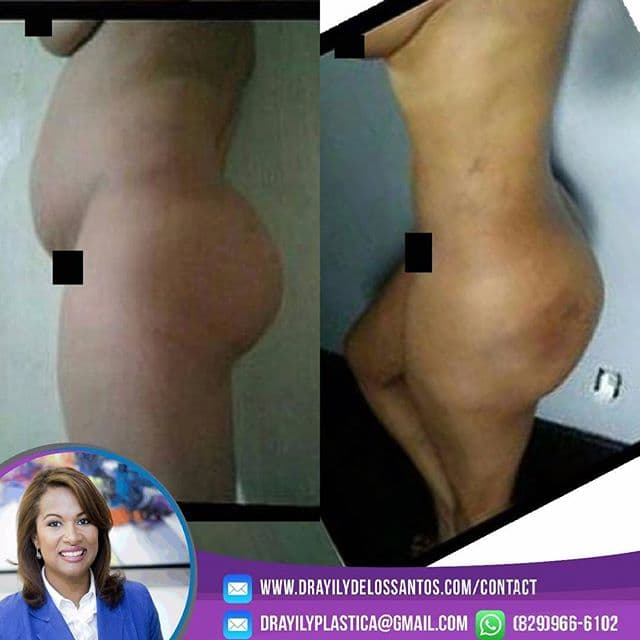 Dominican Plastic Surgery Before And After photo - 1