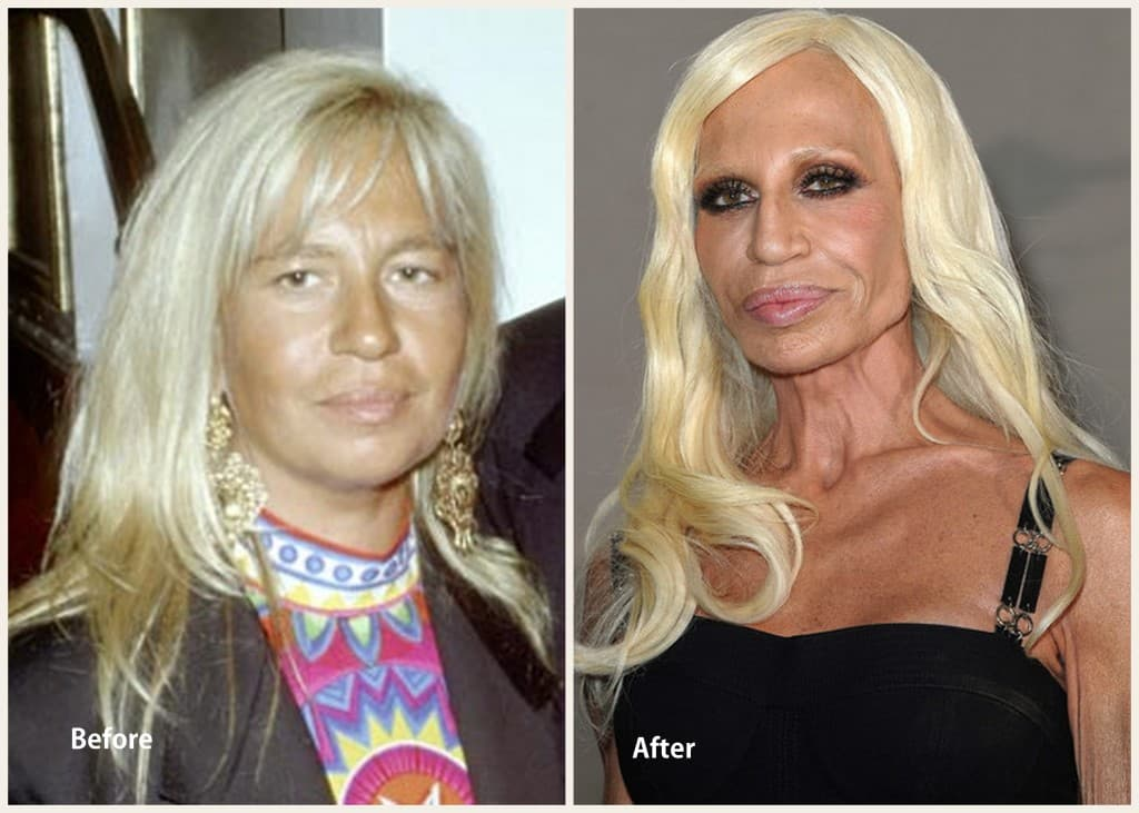 Donatella Before & After Plastic Surgery photo - 1