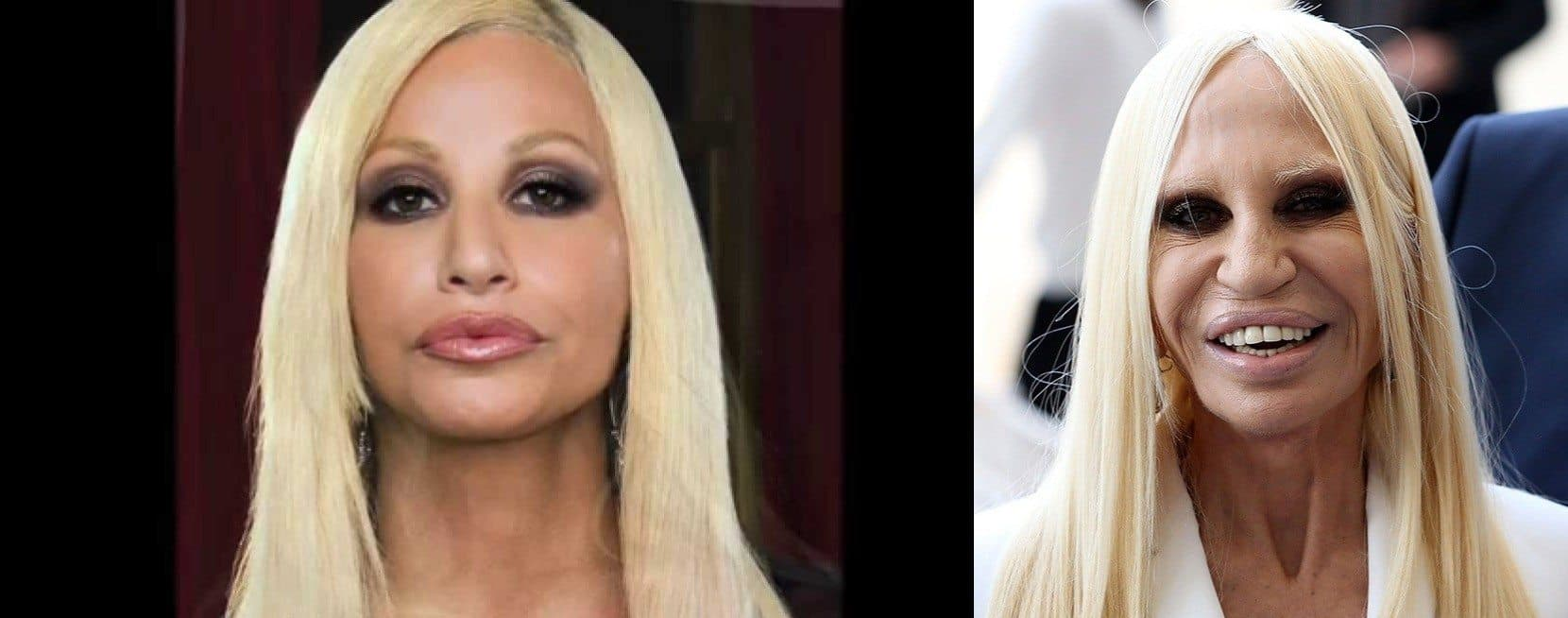 Donatella Plastic Surgery Before photo - 1