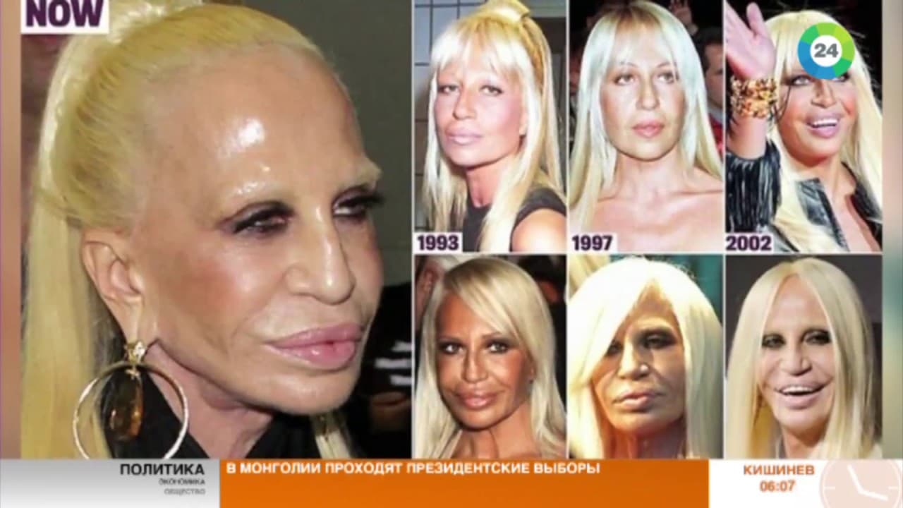 Donatella Versace Before And After Plastic Surgery photo - 1