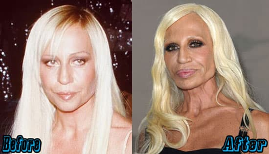 Donatella Versace Before Plastic Surgery photo - 1