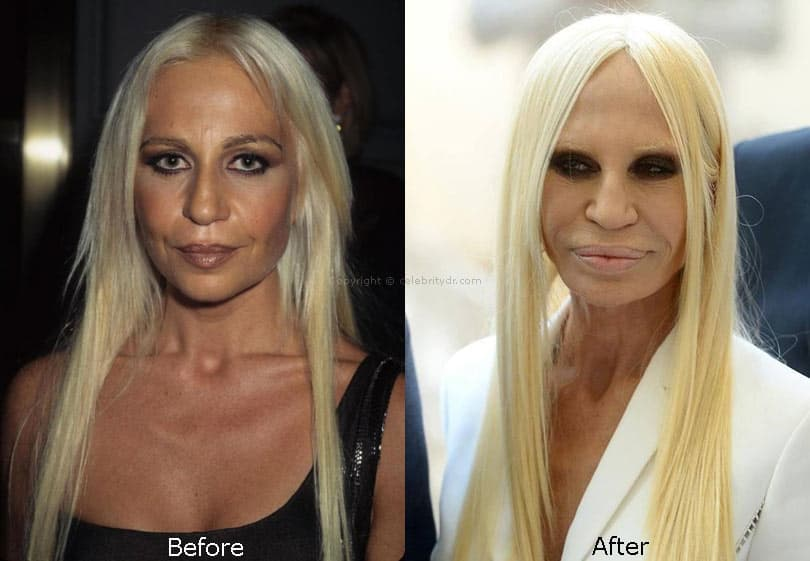 Donatella Versace Plastic Surgery Before And After photo - 1