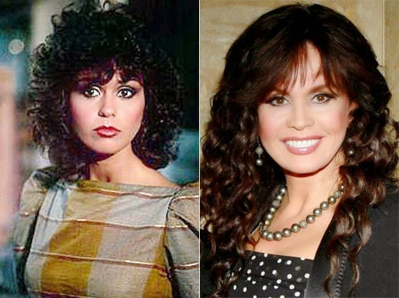 Donny Osmond Plastic Surgery Before And After photo - 1