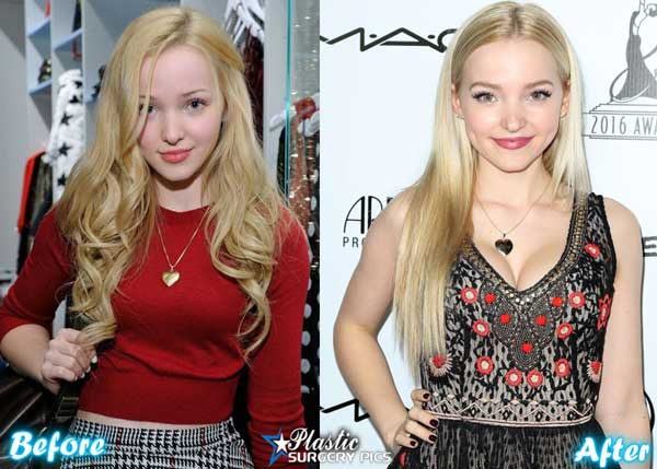Dove Cameron Before Plastic Surgery photo - 1