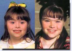 Down Syndrome Before And After Plastic Surgery photo - 1