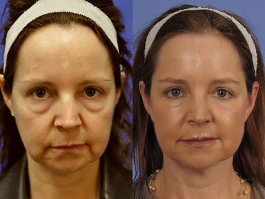 Dr Oz Plastic Surgery Before After photo - 1