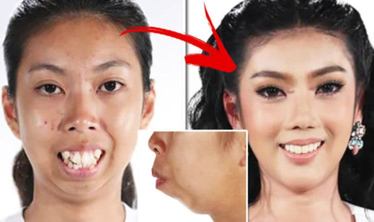 Drag Queens Before And After Plastic Surgery photo - 1