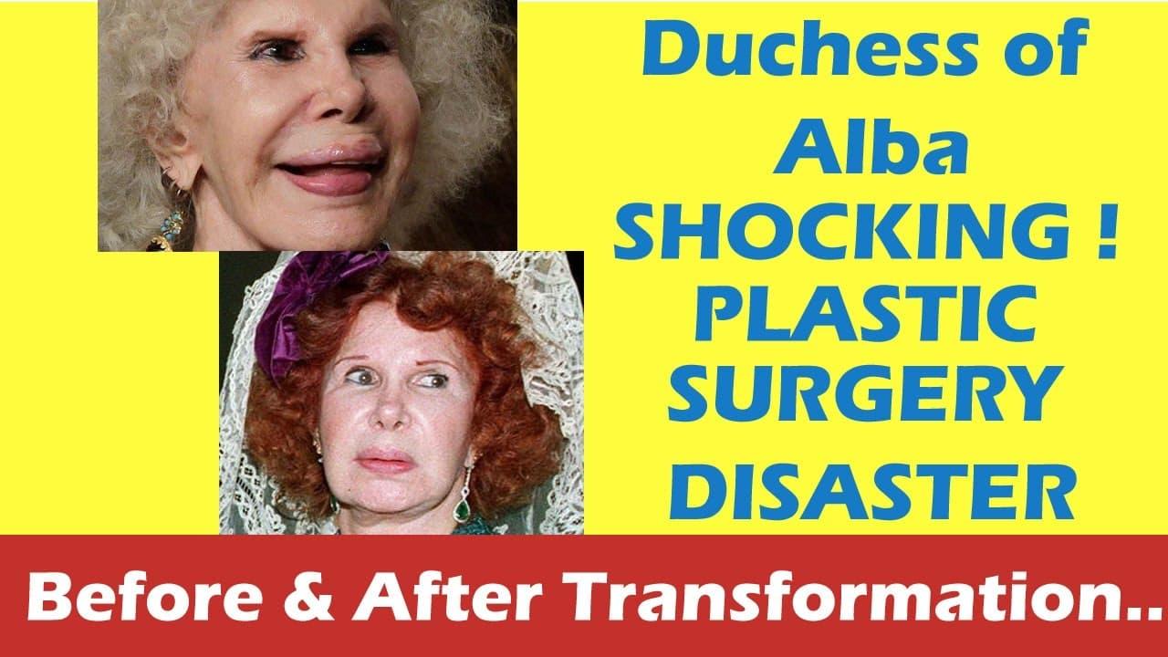 Duchess Of Alba Plastic Surgery Before photo - 1