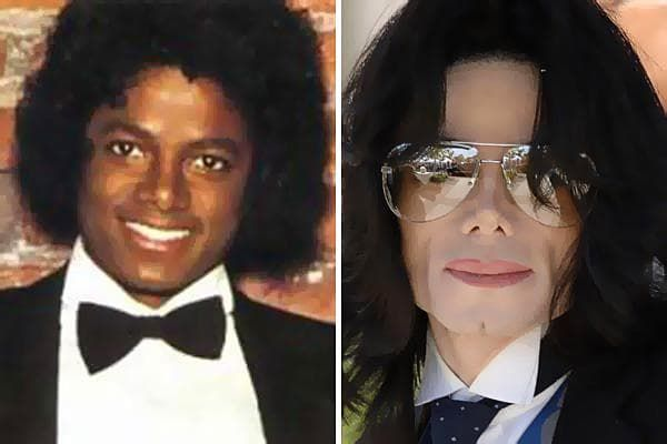 Dylan Before And After Plastic Surgery photo - 1