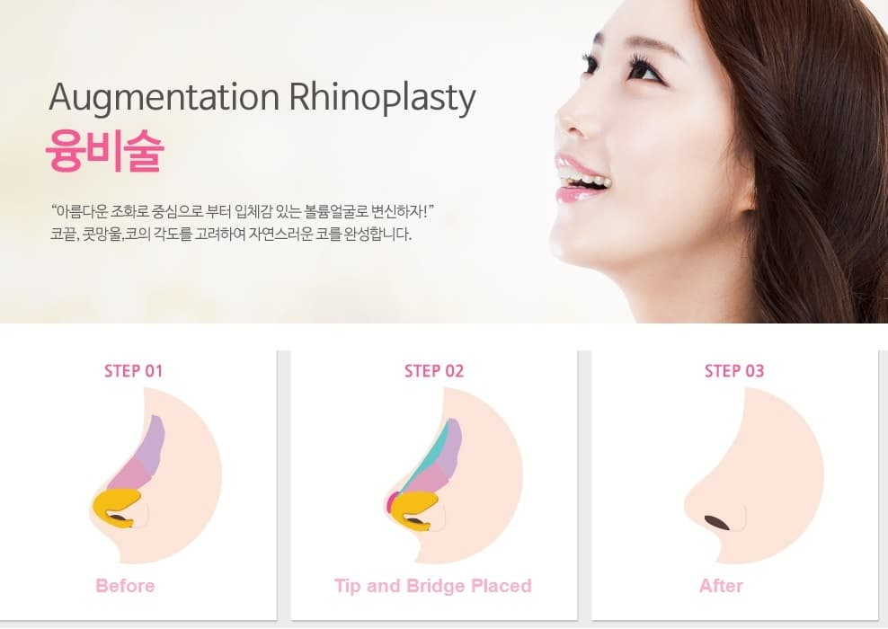Eight Plastic Surgery Korea Before And After photo - 1