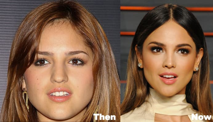 Eiza Gonzalez Before Plastic Surgery photo - 1