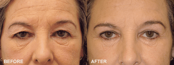 Elderly Plastic Surgery Before After photo - 1