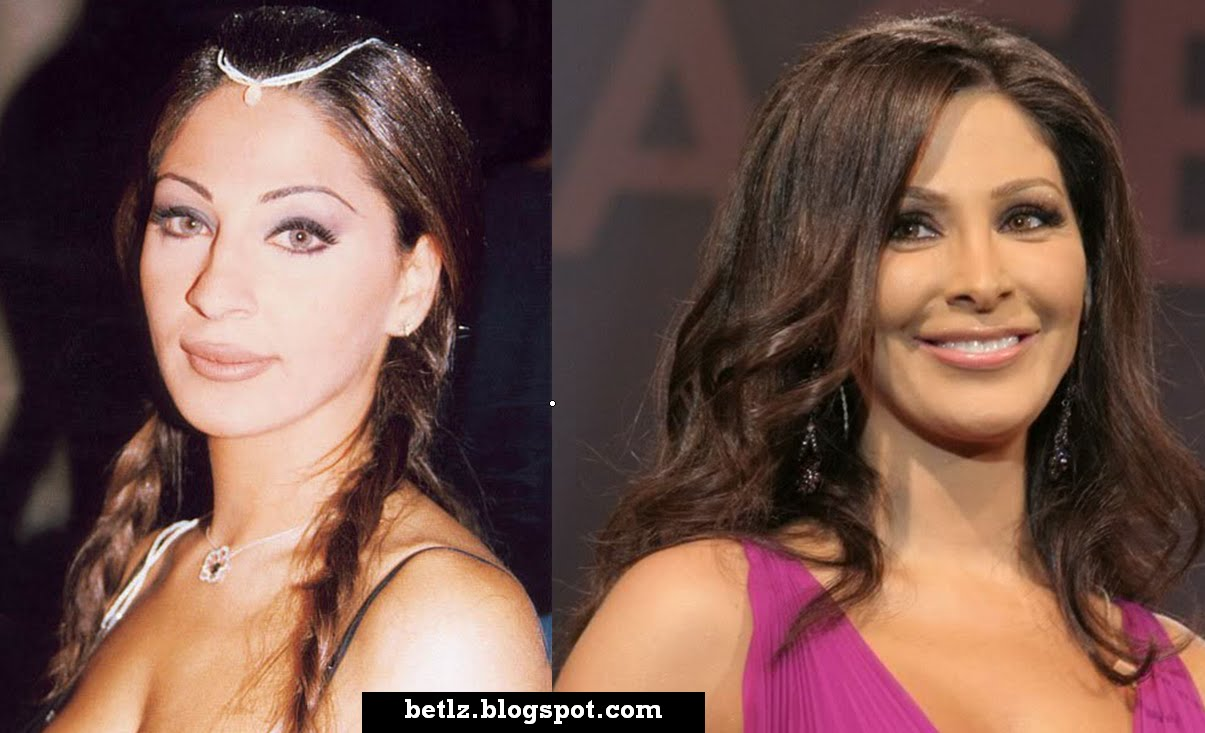 Elissa Before Plastic Surgery photo - 1