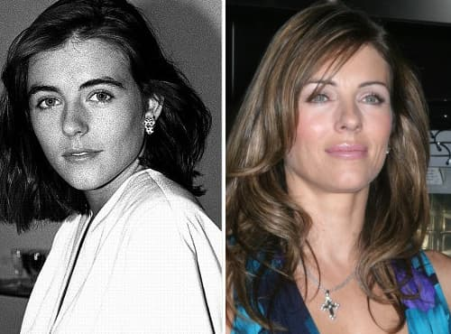 Elizabeth Hurley Before Plastic Surgery photo - 1