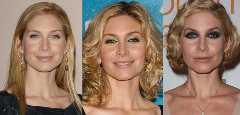 Elizabeth Mitchell Before Plastic Surgery photo - 1