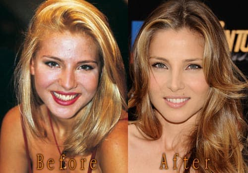 Elsa Pataky Before Plastic Surgery photo - 1