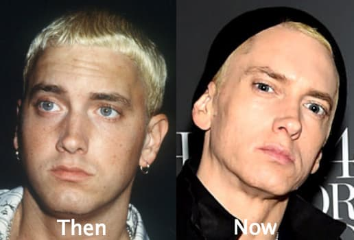 Eminem Plastic Surgery Before And After photo - 1