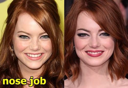 Emma Stone Plastic Surgery Before And After photo - 1