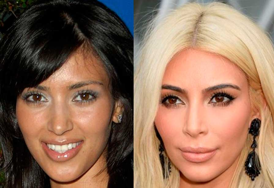 Ethnic Plastic Surgery Before And After photo - 1