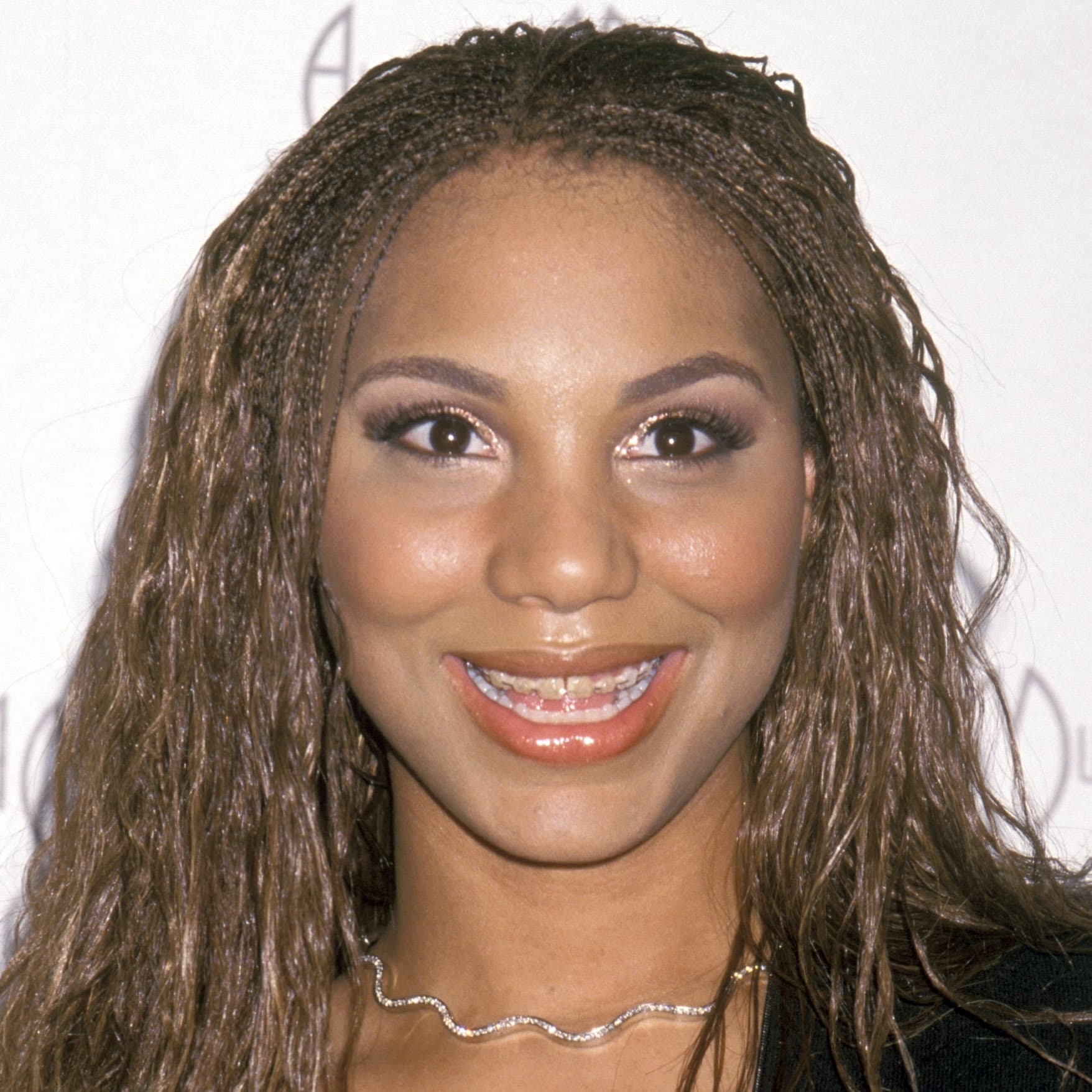 Evelyn Braxton Before Plastic Surgery photo - 1